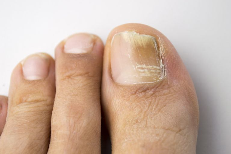 Horizon Foot & Ankle in St. Louis, MO - a fungal toenail that is brittle and crumbling.